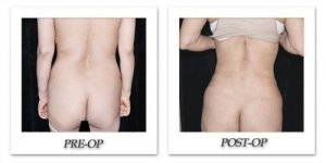 phoca_thumb_l_mandris-liposuction-027