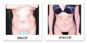 phoca_thumb_l_mandris-liposuction-028