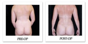 phoca_thumb_l_mandris-liposuction-029