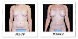 phoca_thumb_l_mandris-liposuction-030