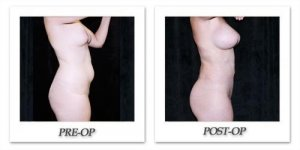 phoca_thumb_l_mandris-liposuction-031