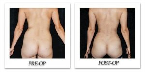 phoca_thumb_l_mandris-liposuction-032