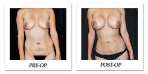 phoca_thumb_l_mandris-liposuction-033