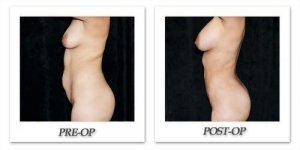 phoca_thumb_l_mandris-liposuction-034