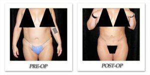 phoca_thumb_l_mandris-liposuction-035