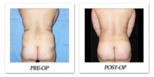 phoca_thumb_l_mandris-liposuction-036