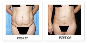 phoca_thumb_l_mandris-liposuction-037