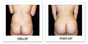 phoca_thumb_l_mandris-liposuction-038