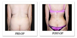 phoca_thumb_l_mandris-liposuction-040