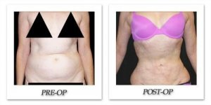 phoca_thumb_l_mandris-liposuction-041