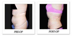 phoca_thumb_l_mandris-liposuction-042
