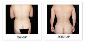 phoca_thumb_l_mandris-liposuction-043