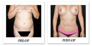 phoca_thumb_l_mandris-liposuction-044