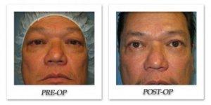phoca_thumb_l_bruno-blepharoplasty-001
