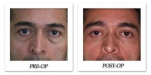 phoca_thumb_l_israel-blepharoplasty-012