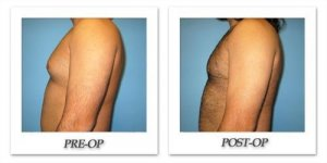 phoca_thumb_l_bruno-gynecomastia-002