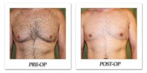 phoca_thumb_l_dr-begovic-male-breast-reduction-before-after-001