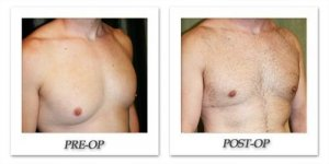 phoca_thumb_l_dr-begovic-male-breast-reduction-before-after-002