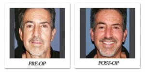 phoca_thumb_l_dr-begovic-facelift-before-after-001-front
