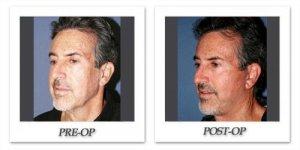phoca_thumb_l_dr-begovic-facelift-before-after-001-oblique