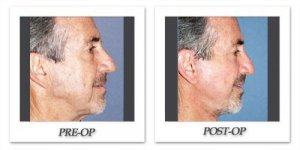 phoca_thumb_l_dr-begovic-facelift-before-after-001-side