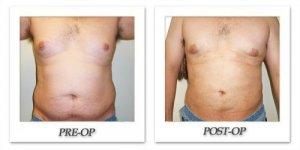 phoca_thumb_l_cohen-liposuction-001