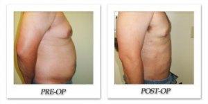 phoca_thumb_l_cohen-liposuction-002
