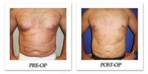 phoca_thumb_l_cohen-liposuction-006