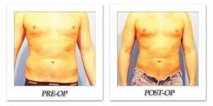 phoca_thumb_l_hodnett-liposuction-018