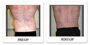 phoca_thumb_l_liposuction-patient1