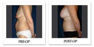 phoca_thumb_l_hsu-post-gastric-bypass-002