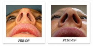phoca_thumb_m_bruno-rhinoplasty-009