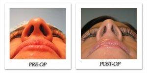 phoca_thumb_m_bruno-rhinoplasty-010