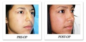 phoca_thumb_m_dr-begovic-rhinoplasty-before-after-001-oblique