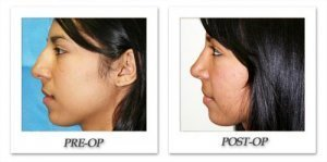 phoca_thumb_m_dr-begovic-rhinoplasty-before-after-001-side