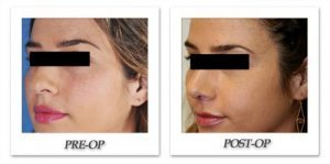 phoca_thumb_m_dr-begovic-rhinoplasty-before-after-002-oblique