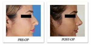 phoca_thumb_m_dr-begovic-rhinoplasty-before-after-002-side