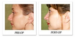 phoca_thumb_m_dr-begovic-rhinoplasty-before-after-003-side2