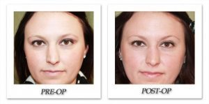 phoca_thumb_m_dr-begovic-rhinoplasty-before-after-004-front