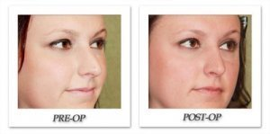 phoca_thumb_m_dr-begovic-rhinoplasty-before-after-004-oblique