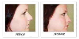 phoca_thumb_m_dr-begovic-rhinoplasty-before-after-004-side