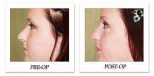 phoca_thumb_m_dr-begovic-rhinoplasty-before-after-004-side2