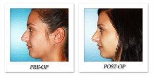 phoca_thumb_m_dr-begovic-rhinoplasty-before-after-005-1