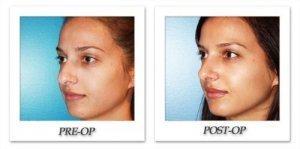 phoca_thumb_m_dr-begovic-rhinoplasty-before-after-005-2