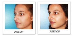 phoca_thumb_m_dr-begovic-rhinoplasty-before-after-005-2