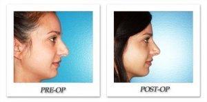 phoca_thumb_m_dr-begovic-rhinoplasty-before-after-005-3