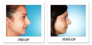 phoca_thumb_m_dr-begovic-rhinoplasty-before-after-005-3