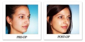 phoca_thumb_m_dr-begovic-rhinoplasty-before-after-005-4