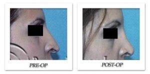 phoca_thumb_m_hodnett-rhinoplasty-001