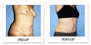phoca_thumb_l_dr-begovic-tummy-tuck-before-after-001